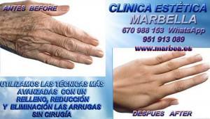 Eliminación manchas de las manos en Marbella CLINICA ESTÉTICA MARBELLA te ofrecemos la mejor opción