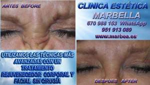 Medicina Estetica Marbella REDUCCIÓN ARRUGAS MARBELLA