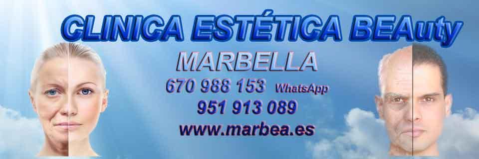 REDUCCIÓN ARRUGAS MARBELLA |ESTÉTICA MARBELLA