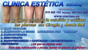 MARBELLA ELIMINAR CELULITIS | BELLEZA PIERNAS MARBELLA