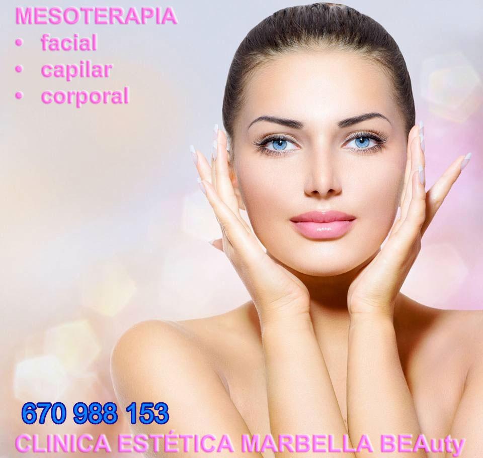 mesoterapia facial Marbella Encantada con los tratamientos que me han realizado