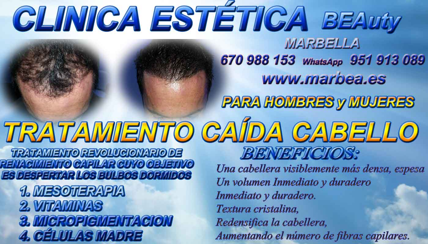TRATAMIENTOS PARA LA CAIDA DEL PELO CLINICA ESTÉTICA micropigmentación capilar Málaga or en Marbella y MAQUILLAJE PERMANENTE en MARBELLA