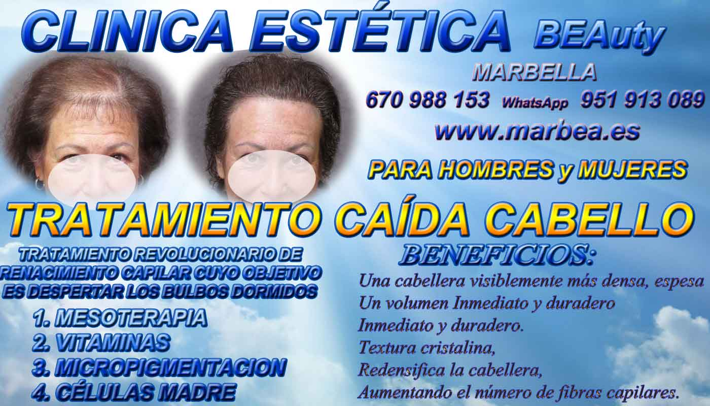 TRATAMIENTOS PARA LA CAIDA DEL PELO CLINICA ESTÉTICA dermopigmentacion capilar Málaga o Marbella y maquillaje permanente en marbella