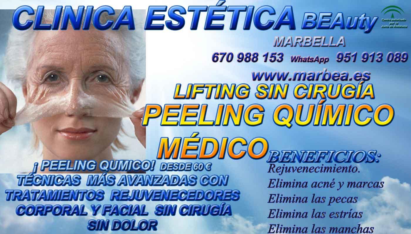 CLINICA ESTÉTICA MARBELLA - Los más avanzados tratamientos de medicina estética, en especial en estética facial