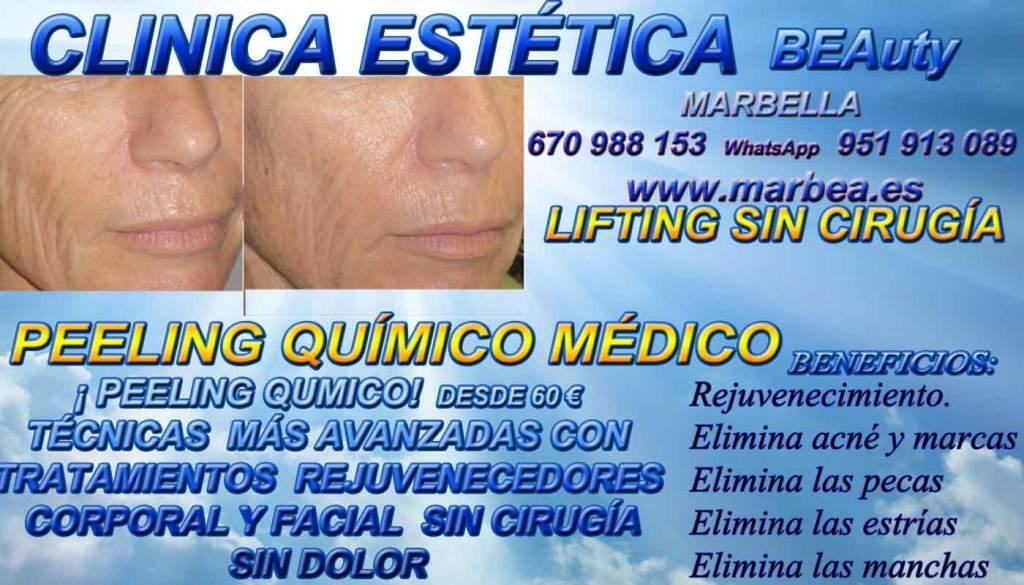CLINICA ESTÉTICA MARBELLA ofrece PEELING QUÍMICO MÉDICO FACIAL, PARA ELIMINACIÓN O QUITAR ACNÉ , MARCAS Y CICATRICES , SOLUCIÓN CONTRA EL MANCHAS , PEELING FACIAL PARA TRATAR LAS CICATRICES DEL ACNÉ , PECAS , ESTRÍAS , MANCHAS