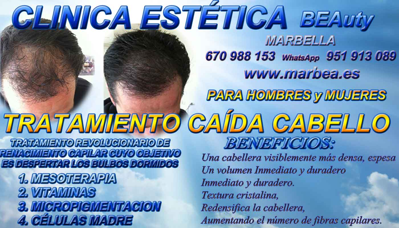 TRATAMIENTOS PARA LA CAIDA DEL PELO CLINICA ESTÉTICA micropigmentación capilar Málaga o en Marbella y maquillaje permanente en marbella