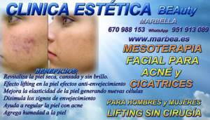 Marbella - La Mesoterapia Facial y corporal corrige la falta de ACN Y MARCAS DE ACNÉ