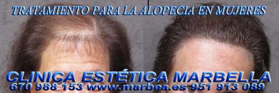 MARBELLA : TRATAMIENTO para la ALOPECIA | CAÍDA CABELLO  EN MUJERES