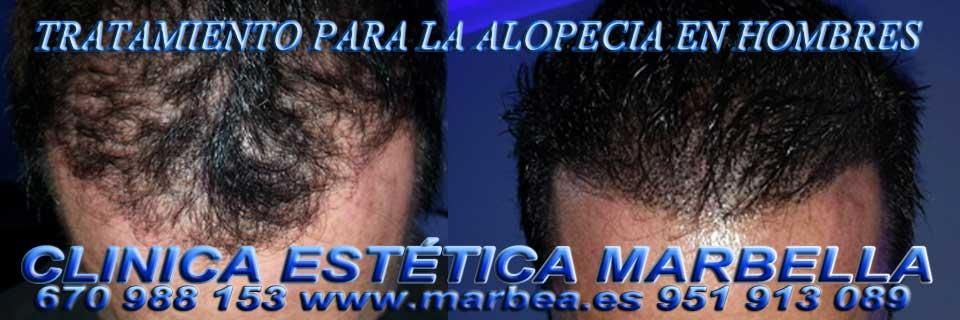 MARBELLA : TRATAMIENTO para la ALOPECIA | CAÍDA CABELLO  EN HOMBRES