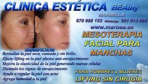 Marbella - La Mesoterapia Facial y corporal corrige la falta de luminosidad en el rostro