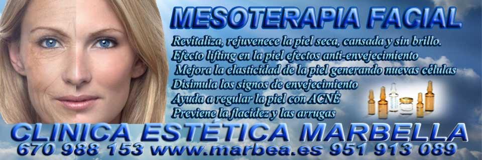 MESOTERAPIA MARBELLA | REDUCCIÓN ARRUGAS MARBELLA  | RELLENO ARRUGAS MARBELLA