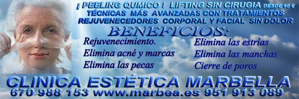 PEELIING QUMICO MARBELLA |CLINICA ESTÉTICA MARBELLA