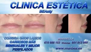 CLINICA ESTÉTICA MARBELLA | AVD. PUERTA DEL MAR 3 | CLÍNICAS DE MEDICINA Y CIRUGÍA ESTÉTICA ESPECIALIZADAS EN: AUMENTO LABIOS MARBELLA | AUMENTAR LABIOS MARBELLA | VOLUMEN LABIOS MARBELLA | RELLENO DE LABIOS EN MARBELLA |