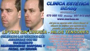 En la CLINICA ESTÉTICA MARBELLA hacemos un tratamiento único que permite combinar dos acciones: MARBELLA LIFTING FACIAL SIN CIRUGIA CON HILOS TENSORES , MESOTERAPIA MARBELLA TRATAMIENTO FACIAL CORPORAL | REJUVENECIMIENTO FACIALES SIN CIRUGIA EN MARBELLA CON MESOTERAPIA FACIAL PARA ADELGAZAR LA CARA | REDUCCIÓN ARRUGAS MARBELLA con MESOTERAPIA PARA eliminar o borrar BOLSAS de OJOS | RELLENO ARRUGAS MARBELLA con MESOTERAPIA FACIAL PARA MARCAS DE ACNÉ | TRATAMIENTO PARA EL ACNÉ – La Mesoterapia FACIAL | Tratamiento para manchas en la cara con MESOTERAPIA FACIAL | MARBELLA REJUVENECIMIENTO FACIAL | MESOTERAPIA FACIAL PARA HOMBRE | MESOTERAPIA FACIAL PARA CICATRICES DE ACNÉ | MESOTERAPIA FACIAL PÁRPADOS | MESOTERAPIA FACIAL CUELLO | MESOTERAPIA FACIAL EN LA PAPADA |
