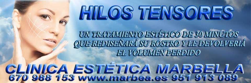 HILOS TENSORES EN MARBELLA LIFTING SIN CIRUGIA