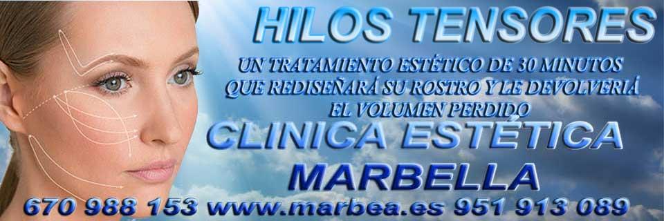 HILOS TENSORES | CORRECCIÓN LAS ARRUGAS en MARBELLA