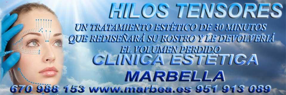 MARBELLA HILOS TENSORES | TRATAMIENTOS DE REJUVENECIMIENTO FACIALES MARBELLA