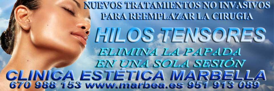 CLINICA ESTÉTICA MARBELLA HILOS TENSORES TRATAMIENTO para REDUCIR | ELIMINAR LA PAPADA | LIFTING SIN CIRUGIA