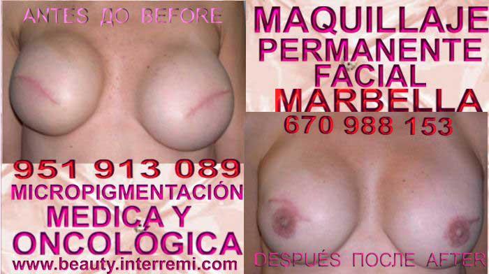 CICATRICES MAMOPLASTIA En la CLÍNICA DE MICROPIGMENTACIÓN MÉDICA Y MAQUILLAJE PERMANENTE OFRECE LOS MEJOR PRECIO PARA reconstrucción de la pezón de mamas post cancer Málaga y Marbella