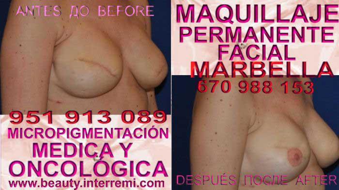 En la CLÍNICA DE MICROPIGMENTACIÓN MÉDICA Y MAQUILLAJE PERMANENTE OFRECE LOS MEJOR PRECIO PARA tratamiento cicatrices posteriormente de reduccion senos en Marbella y Frontera