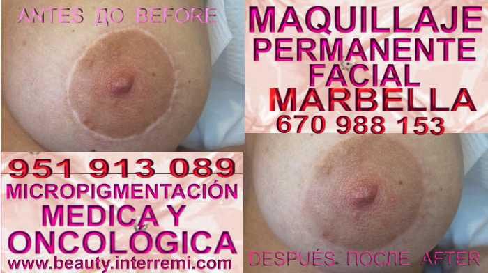 En la CLÍNICA DE MICROPIGMENTACIÓN MÉDICA Y MAQUILLAJE PERMANENTE OFRECE LOS MEJOR PRECIO PARA reconstrucción pezón de senos luego de mastectomia Málaga y Marbella
