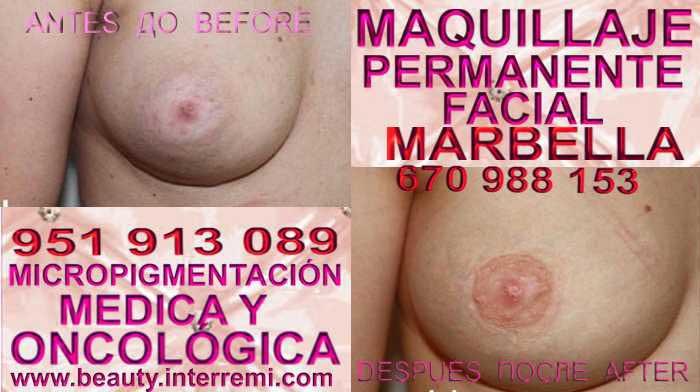 En la CLÍNICA DE MICROPIGMENTACIÓN MÉDICA Y MAQUILLAJE PERMANENTE OFRECE LOS MEJOR PRECIO PARA reconstrucción de la areola de senos post aumentos En Málaga y Marbella
