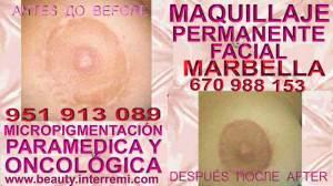 CLINICA ESTÉTICA MARBELLA ofrece TRATAMIENTO CICATRIZ PECHO DESPUES REDUCCION MAMARIA | RELLENOS RECONSTRUCCION AREOLAS | MAMARIA | PECHOS | PEZÓN | SENOS | MAMAS | DERMOPIGMENTACION | CAMUFLAJE | MAMOPLASTIA | CICATRICES | MICROPIGMENTACIÓN MÉDICA