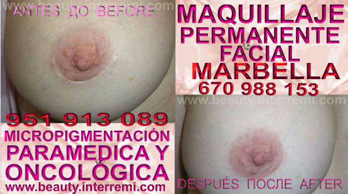 En la CLÍNICA DE MICROPIGMENTACIÓN MÉDICA Y MAQUILLAJE PERMANENTE OFRECE LOS MEJOR PRECIO PARA Tratamiento Cicatriz