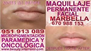 cura para vitiligo Clínica Estética Maquillaje Permanente Facial y Micropigmentación Médica en Marbella y Málaga: Te proponemos la alta calidad de servicios