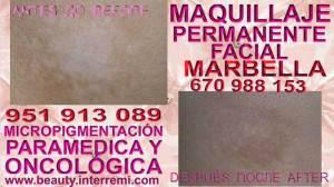 tratamiento contra el vitiligo Clínica Estética Maquillaje Permanente Facial y Micropigmentación Médica en Marbella: Te ofrecemos la mayor calidad de nuestroservicio