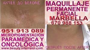 Anti Vitiligo Clínica Estética Maquillaje Permanente Facial y Micropigmentación Médica en Marbella: Te ofrecemos la mayor calidad de nuestroservicio