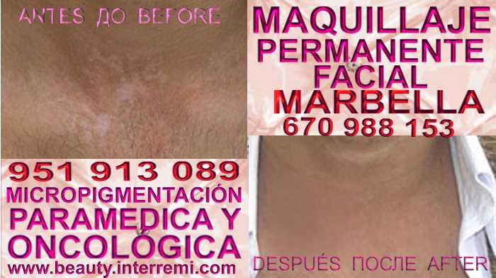 MICROPIGMENTACIÓN VITILIGO clínica estética maquillaje semipermanente ofrece Tratamiento Del Vitiligo