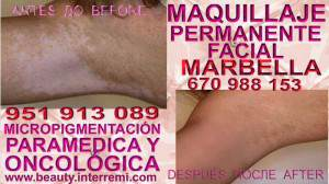 Vitiligo Tratamiento Clínica Estética Maquillaje Permanente Facial y Micropigmentación Médica en Marbella: Te ofrecemos la mayor calidad de nuestroservicio