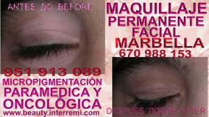 Cura para el Vitiligo Clínica Estética Maquillaje Permanente Facial y Micropigmentación Médica en Marbella y Málaga: Te proponemos la alta calidad de servicios