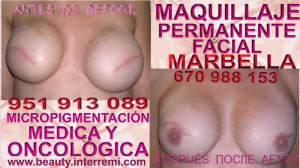 camuflaje de cicatrices Clínica Estética Maquillaje Permanente Facial y Micropigmentación Capilar en Marbella: Te proponemos la alta calidad de nuestroservicio