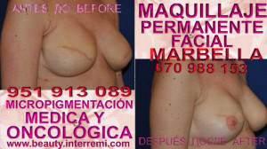 tratamiento cicatriz cáncer Clínica Estética Maquillaje Permanente Facial y Micropigmentación Capilar en Marbella: Te ofrecemos la mayor calidad de servicios