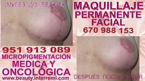 dermopigmentacion para cicatrices Clínica Estética Maquillaje Permanente Facial y Micropigmentación Capilar en Marbella: Te ofrecemos la mayor calidad de servicios