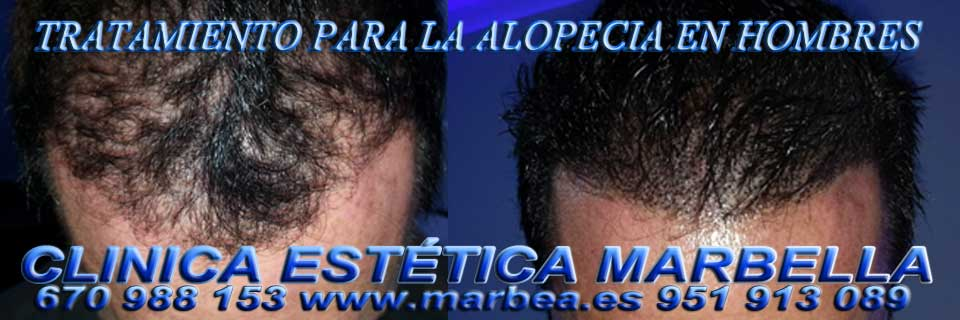 CLINICA ESTÉTICA en MARBELLA ofrece micropigmentación capilar