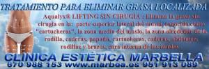 CLINICA ESTÉTICA MARBELLA o CLINICA ESTÉTICA en MARBELLA ofrece los mejor precio por servicio en marbella , ESTÉTICA , BELLEZA REDUCCIÓN ARRUGAS , RELLENO ARRUGAS , TOXINA BOTULÍNICA tipo A , CORRECCIÓN LAS ARRUGAS , ELIMINACION ARRUGAS , ARRUGAS BORRAR , TRATAMIENTO DE ARRUGAS ,