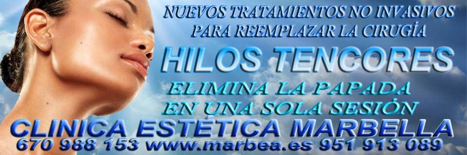 CLINICA ESTÉTICA en MARBELLA ofrece hiperhidrosis Marbella