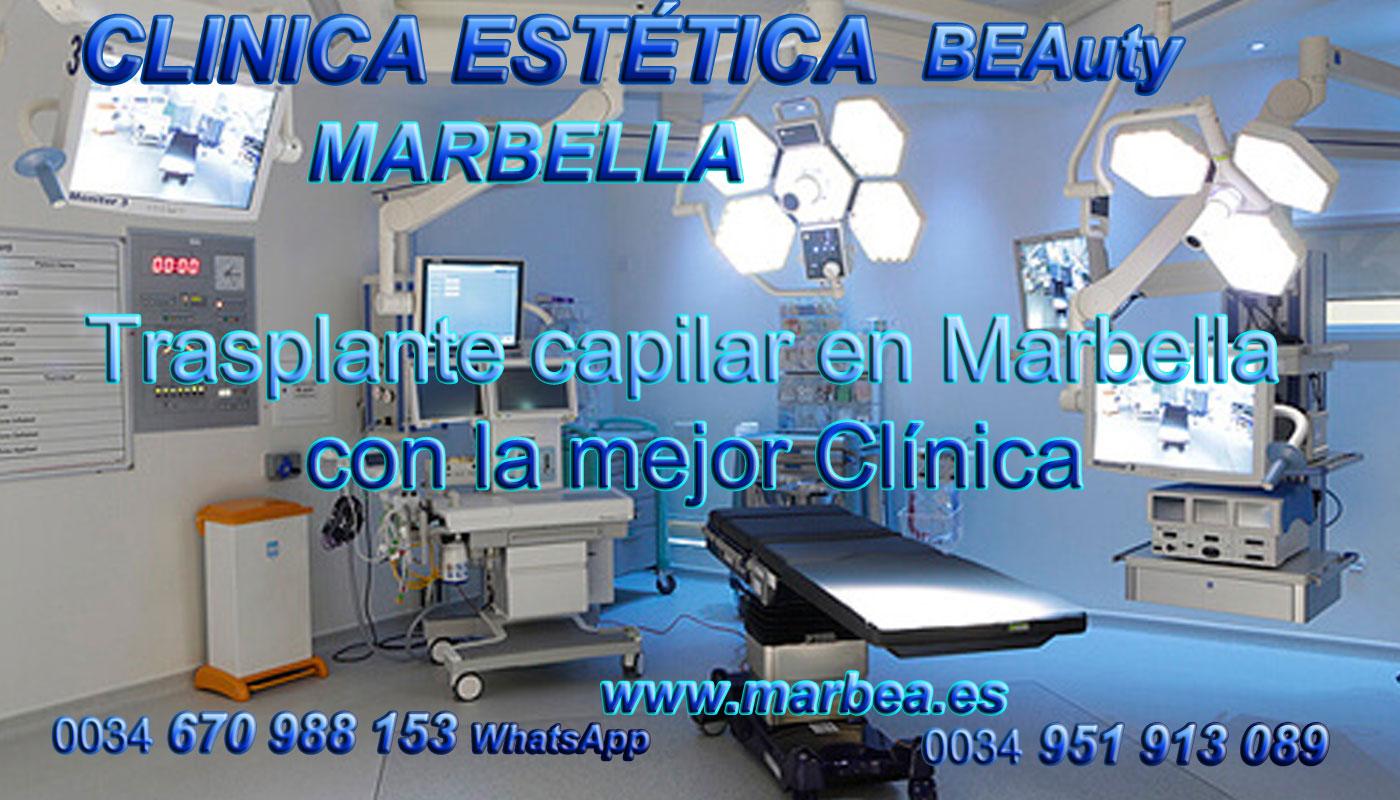 Injertos capilar Clínica Estética y Trasplante Capilar Marbella y Málaga