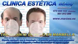 CLINICA ESTÉTICA MARBELLA Somos expertos en la METODO FUE MARBELLA, METODO TIRA MARBELLA, MICROINJERTO CAPILAR PRECIO MARBELLA, MICROINJERTO CAPILAR MARBELLA, TRASPLANTE marbella, IMPLANTE PELO MARBELLA, TECNICA FUE MARBELLA, TECNICA TIRA MARBELLA,