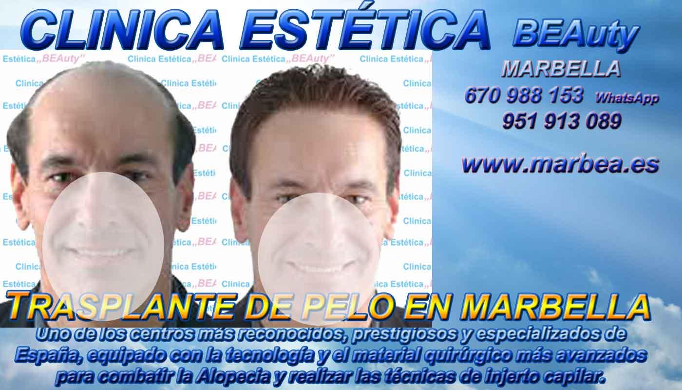 Injertos capilar Clínica Estética y Implante Cabello Marbella y Málaga