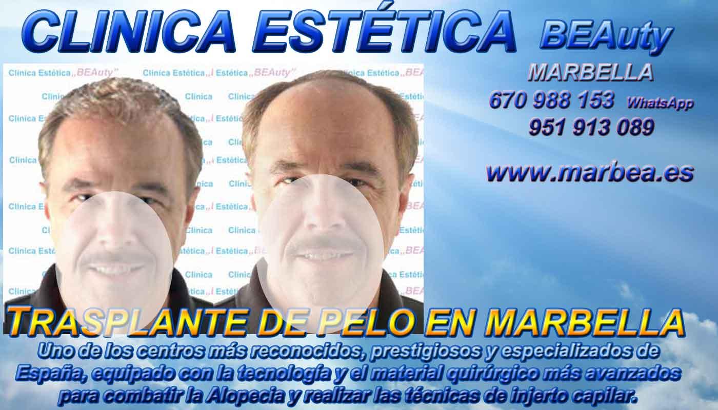 Injertos cabello Clínica Estética y Implante Pelo Marbella y en Málaga