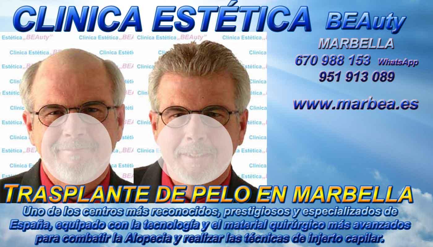 Implante capilar Clínica Estética y Trasplante Pelo En Marbella y Málaga