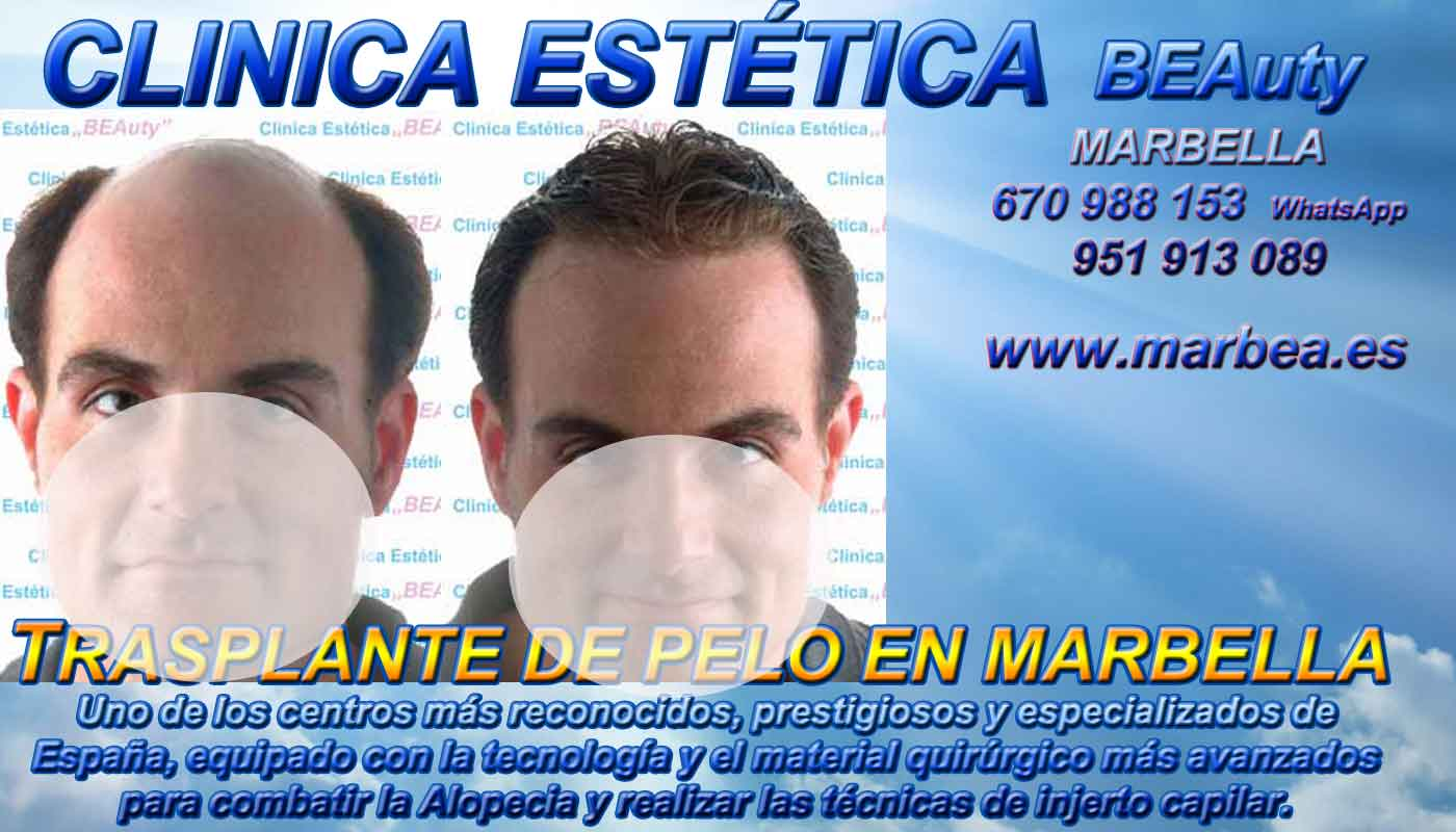 Trasplante capilar Clínica Estética y Trasplante Cabello Marbella y en Coin