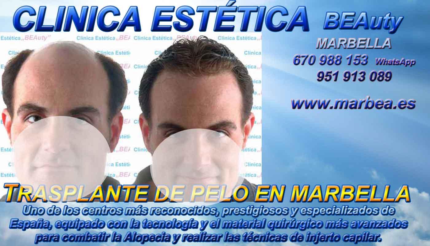 Injertos cabello Clínica Estética y Injertos Capilar En Marbella