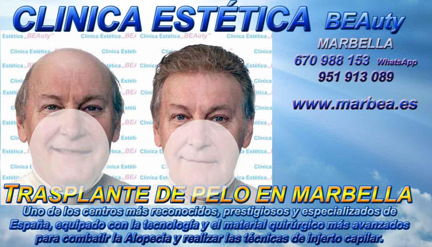 Injertos pelo Clínica Estética y Implante Cabello Marbella y Málaga