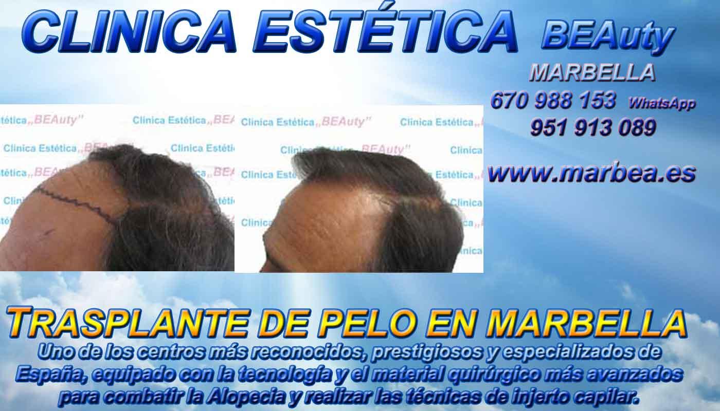 implante pelo Marbella CLINICA ESTÉTICA MARBELLA Somos expertos en la METODO FUE MARBELLA, METODO TIRA MARBELLA, MICROINJERTO CAPILAR PRECIO MARBELLA, MICROINJERTO CAPILAR MARBELLA, Transplante marbella, IMPLANTE PELO MARBELLA, TECNICA FUE MARBELLA, TECNICA TIRA MARBELLA,