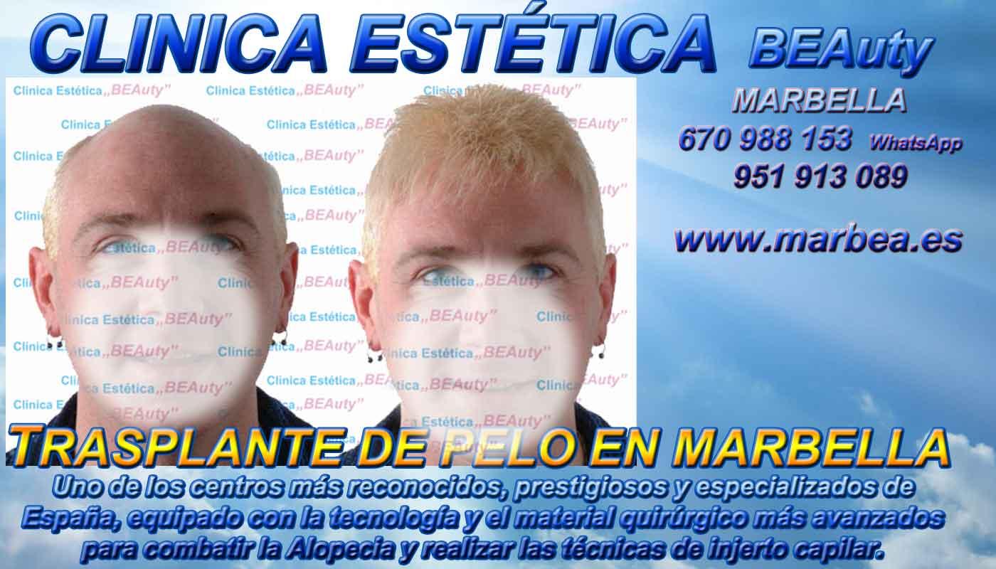 Implante capilar Clínica Estética y Injertos Pelo Marbella y en Málaga